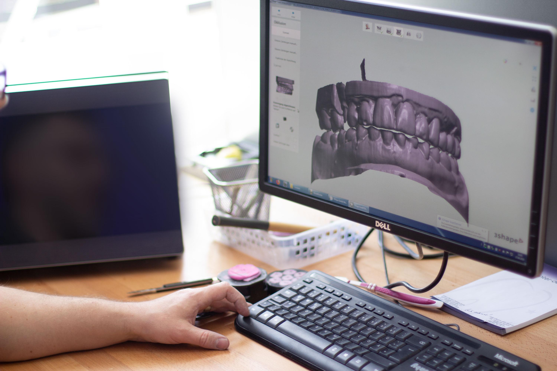 Techniker scannt die Ausgesägten Zahnmodelle.