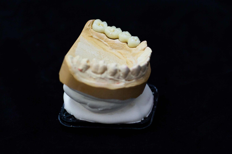 Fertiger Zahnersatz auf einem Modell.
